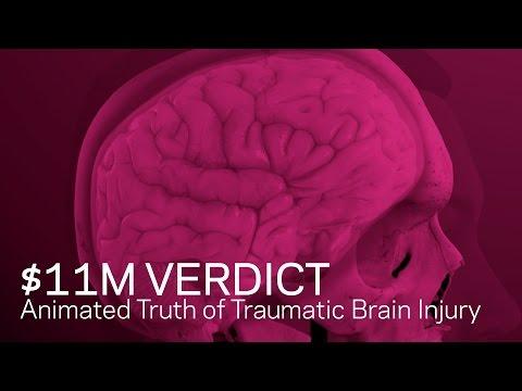 $11m verdict: animated truth of traumatic brain injury