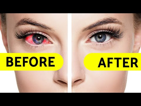 How to get clear and brighten eyes eyes whitening tips   daily bright