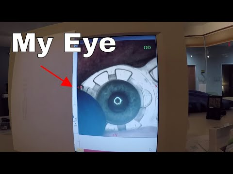 I filmed my lasik eye surgery—a step by step guide to lasik